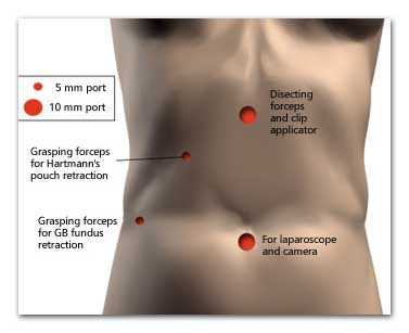 GALLBLADDER after surgery spot
